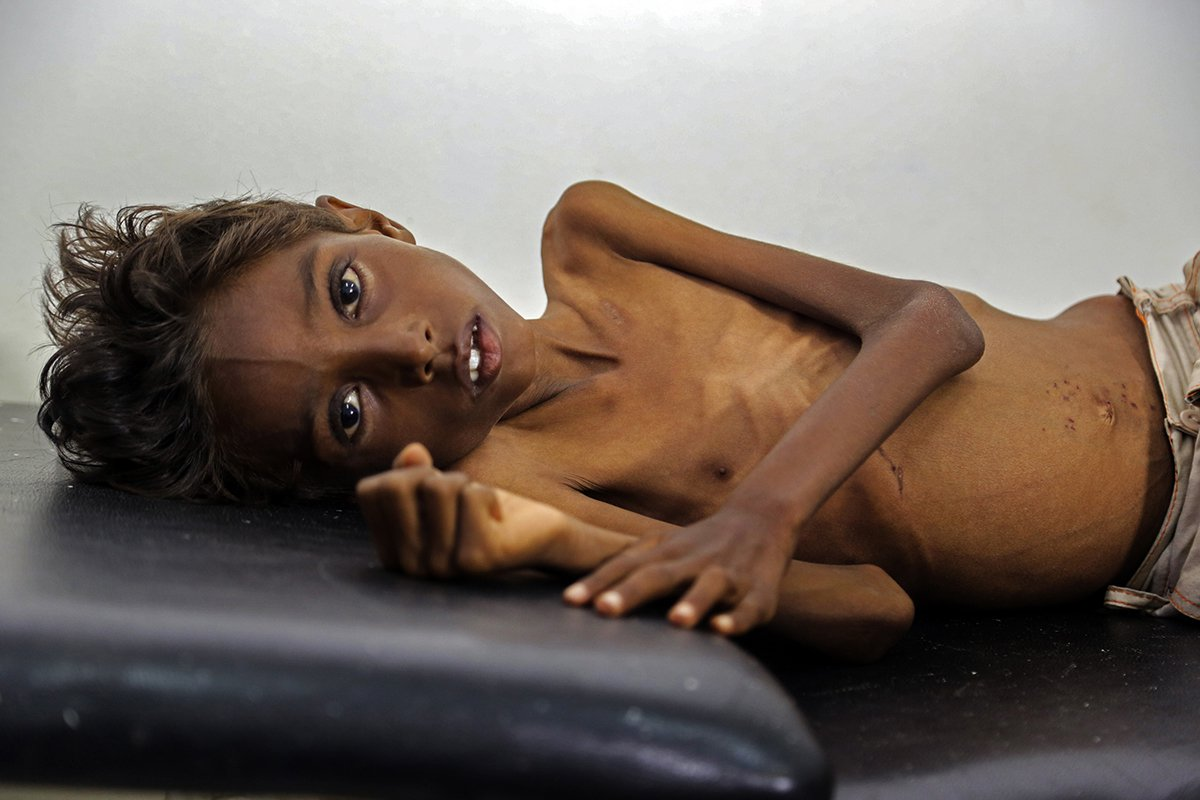 Mohanned, 5 years old, lies on a bed in the Abs hospital on Dec. 12, 2016 in Hajjah, a governorate in Yemen which has some of the highest numbers of severely and acutely malnourished children.