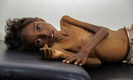 Article: 18 Million Yemenis Could Face Starvation by the End of the Year, UN Says