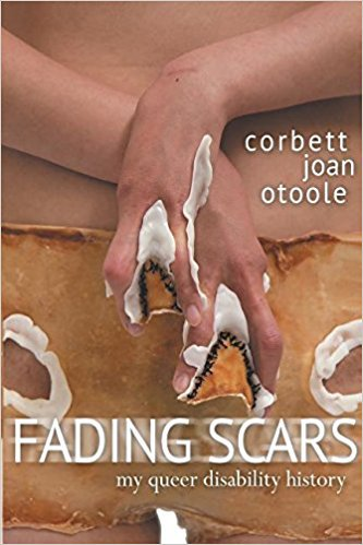Fading Scars- My Queer Disability History.jpg