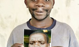 Article: Finally at Age 25, Surgery Ended Enok's Lifetime of Torment