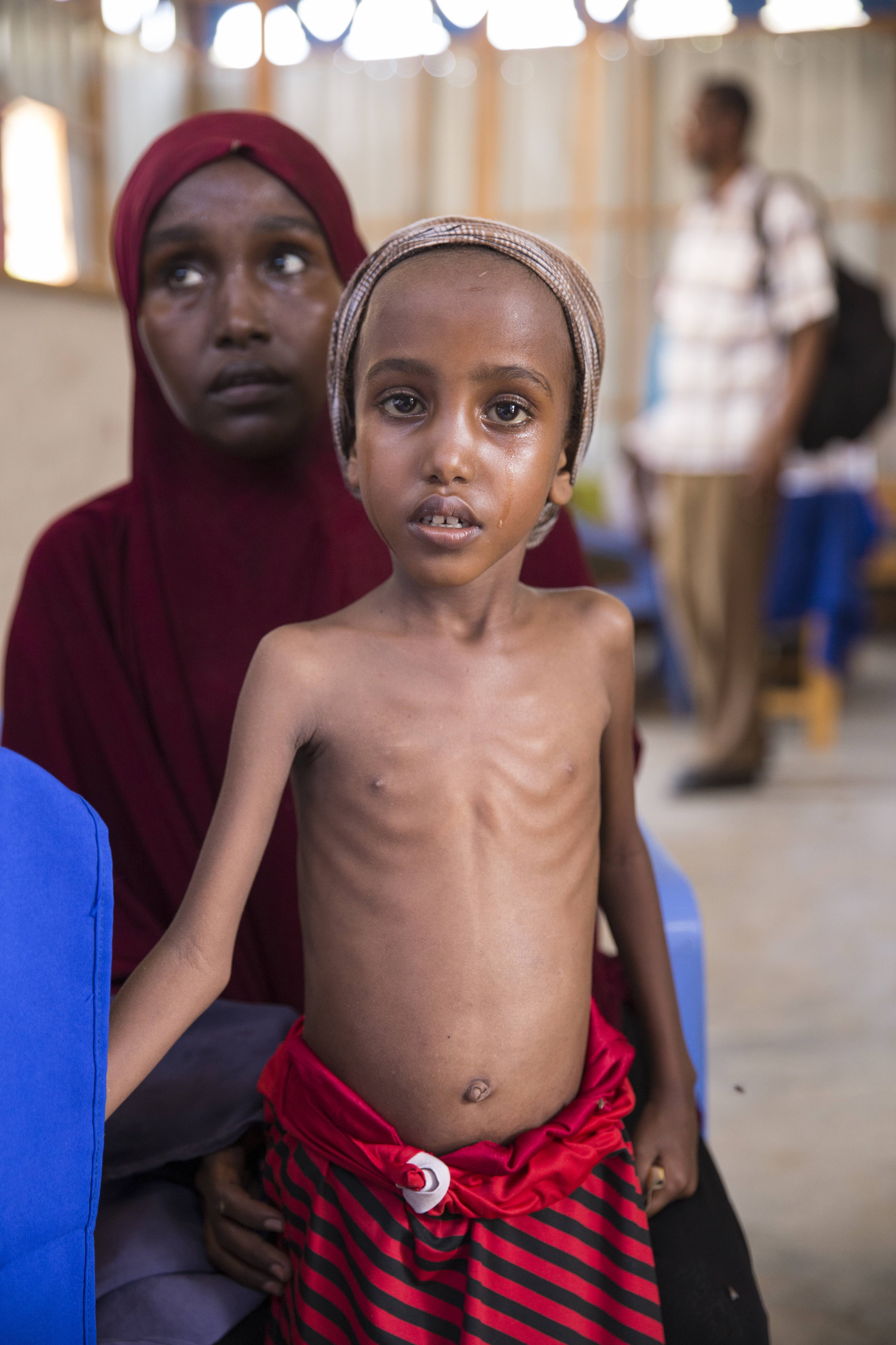 Somalia_before_after_famine_Concern