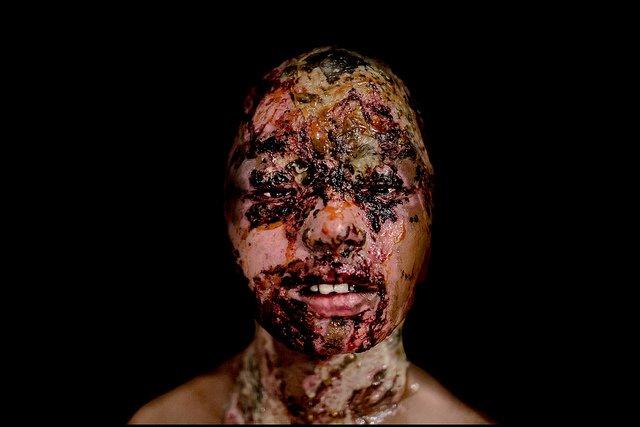acid attack2.jpg