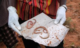 Artículo: What You Don't Know About These Worms That Can Infect Your Body Through Your Feet