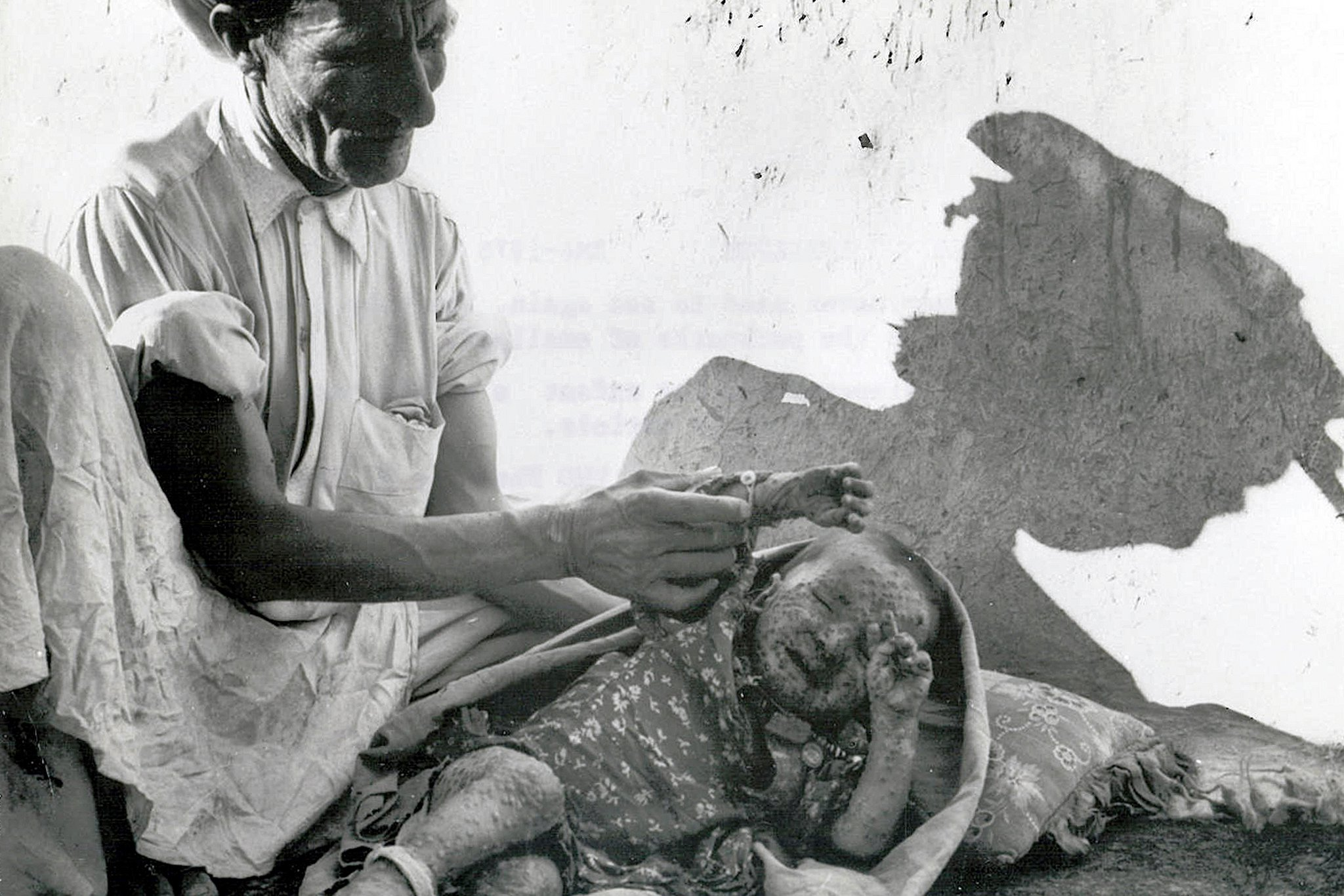 What the Eradication of Smallpox Taught Us About Vaccines