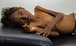 Article: 14 Photos of Staggering Famine in South Sudan, Somalia, Nigeria, and Yemen