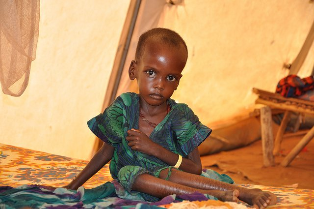 malnutrition children Ethiopia crisis