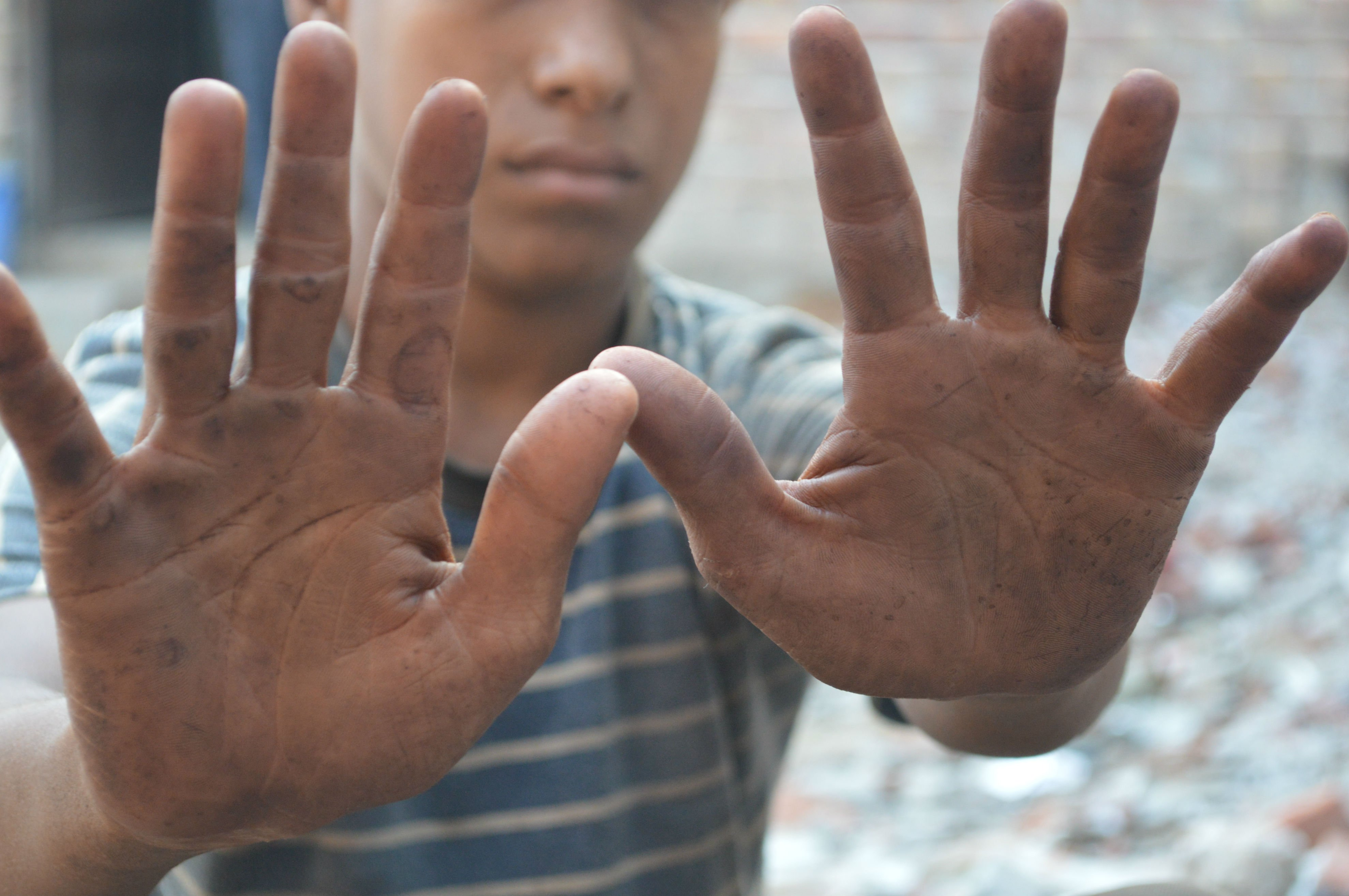 The Face of Child Labour Sakib-BODY-03.jpg