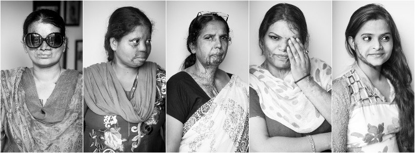 Acid Attack Victims, Cast Out by Society, Are Helping Each