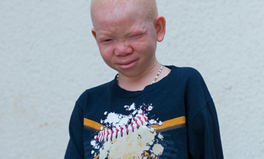 Article: Tanzanian Court Sentenced Six to Prison for Cutting Off the Hand of Albino Boy