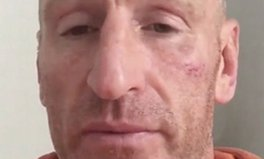 Article: Rugby Star Gareth Thomas Victim of Homophobic Hate Crime in Wales
