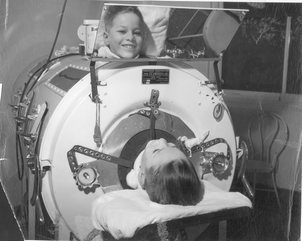 Boy with Polio in Iron Lung