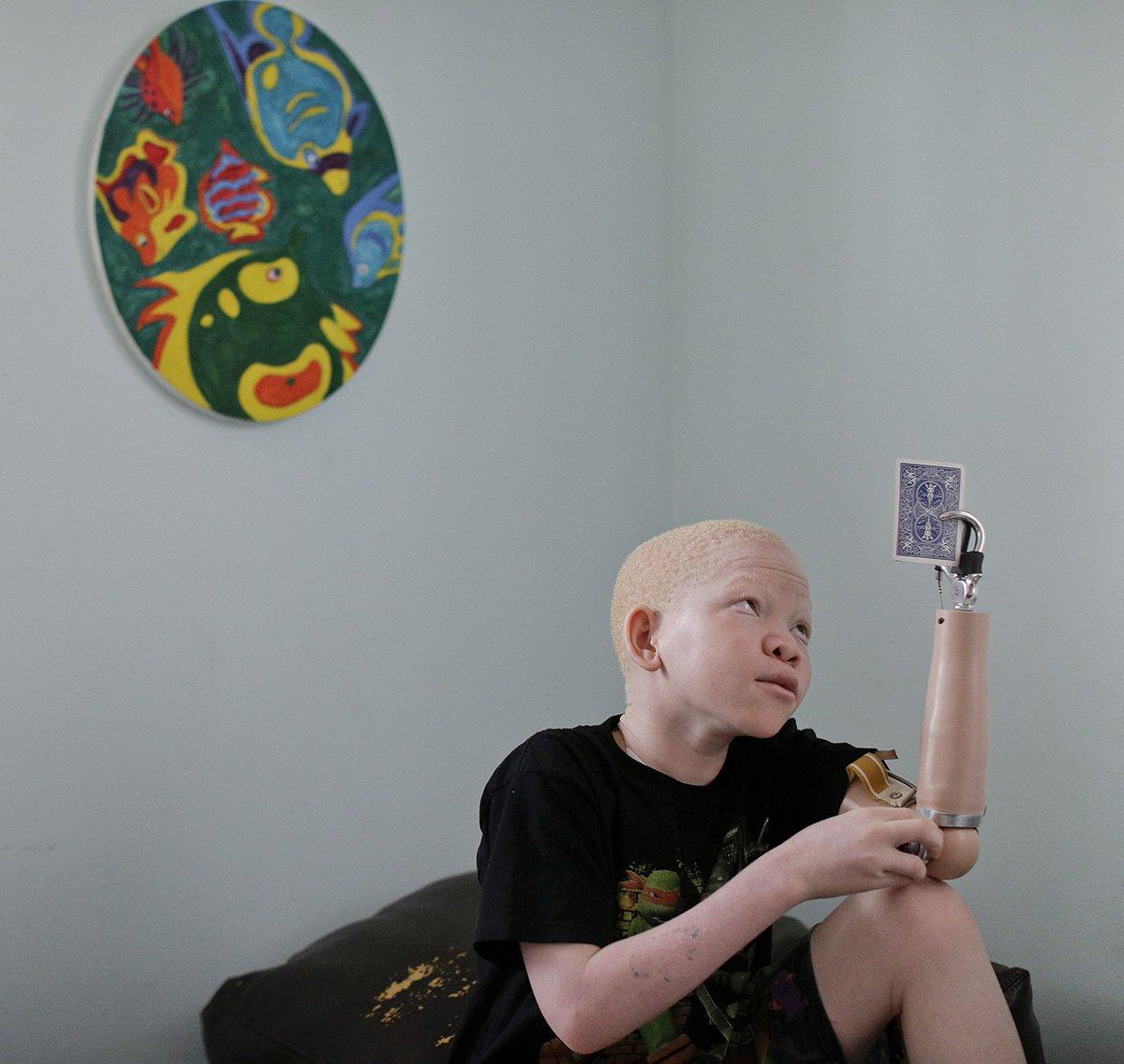 Albino-Children-Witchcraft.jpg
